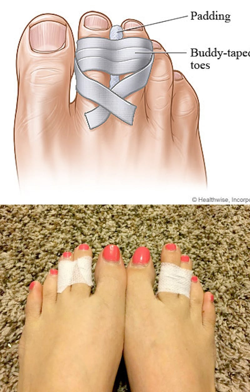 Infographic for toe taping to relieve pain from high heels