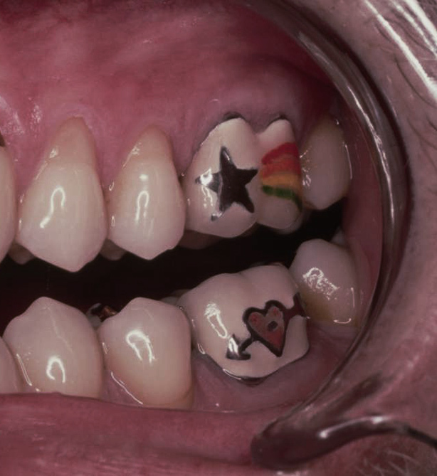 Unusual Tattoo Placement Ideas: Tooth tattoos